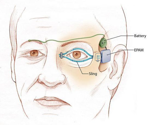 Artificial Eyelids Helpful, Creepy
